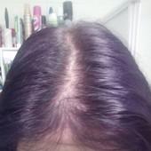 !Средство против впадения волос. Фото свои! Мой результат после месяца использования